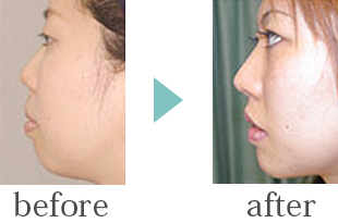 隆鼻術(プロテーゼ)+アゴプロテーゼ