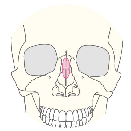 わし鼻修正