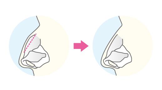 鼻骨骨切り術(鷲鼻修正)の術式