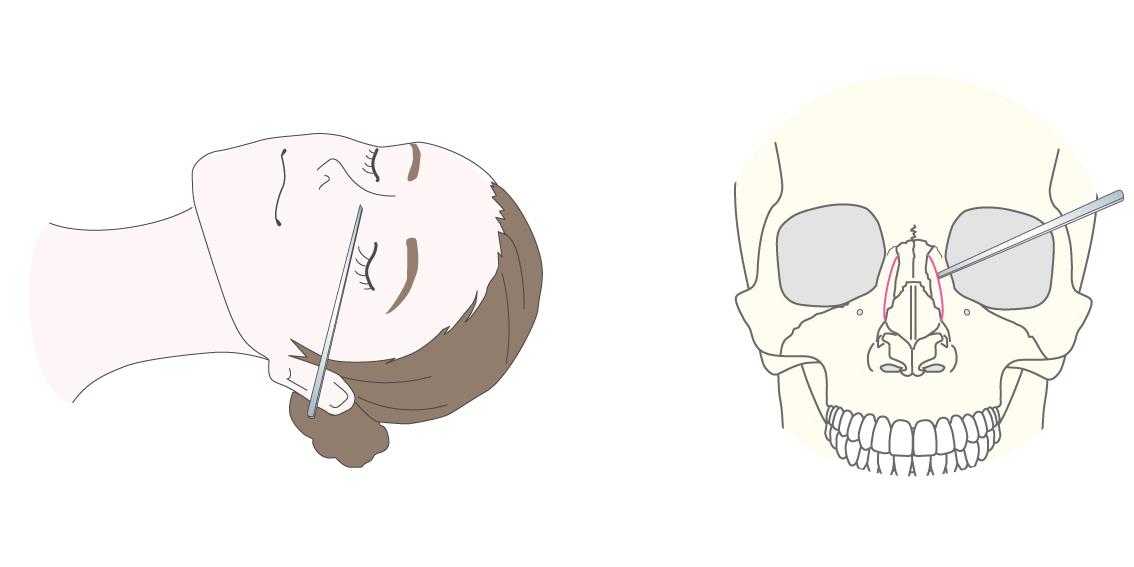 鼻骨骨切り術(鼻骨幅縮小術)