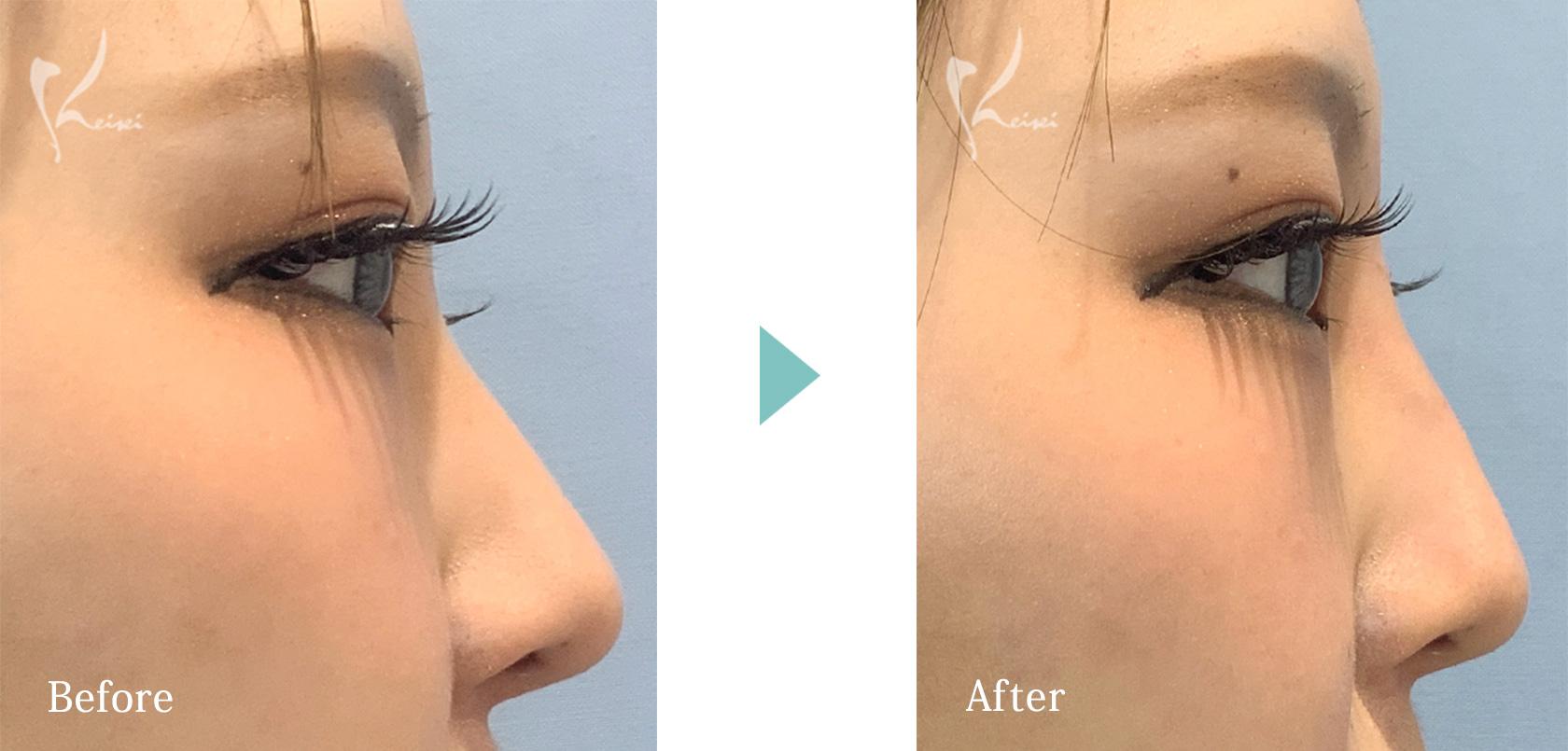 鼻ヒアルロン酸注入の真横からの画像