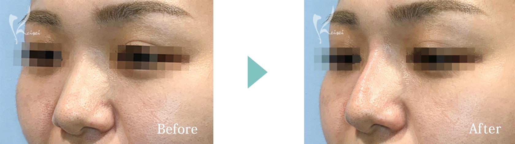 鼻ヒアルロン酸注入の症例2 斜めからの画像