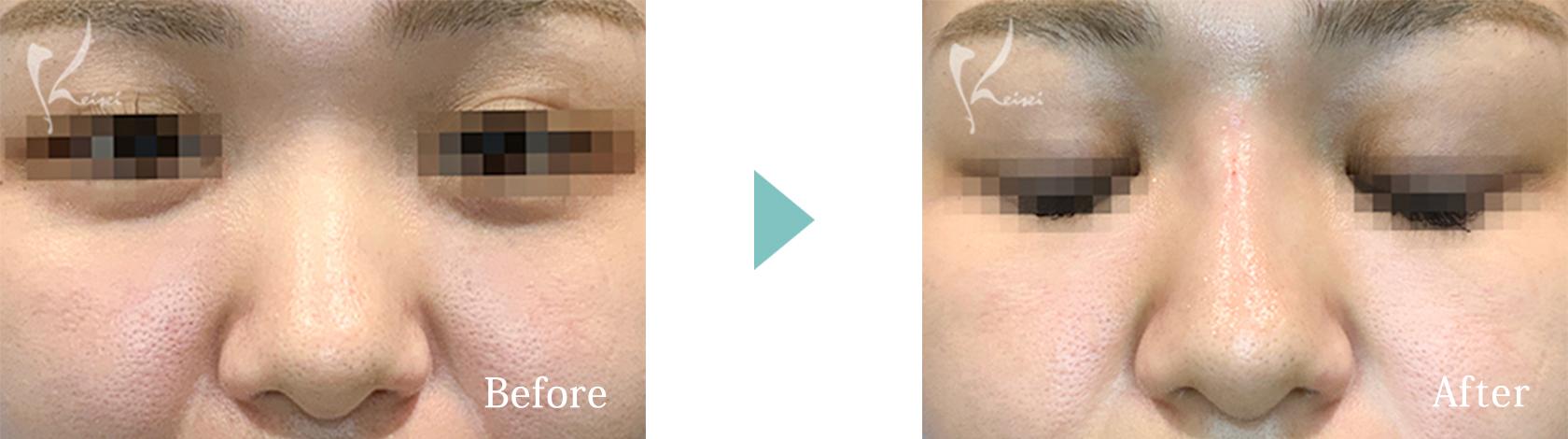 鼻ヒアルロン酸注入の症例2 正面からの画像