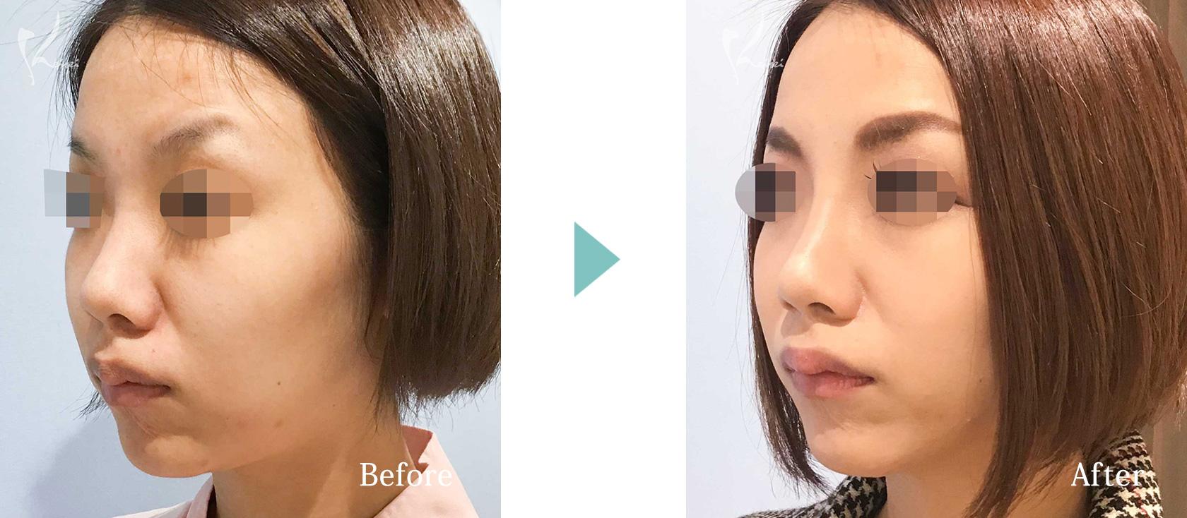 鼻プロテーゼの症例写真