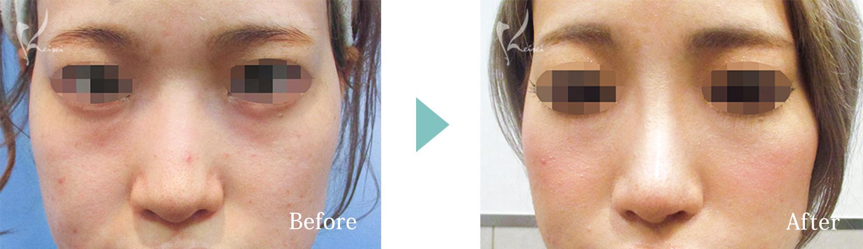 隆鼻術(プロテーゼ)+鼻尖形成の症例写真