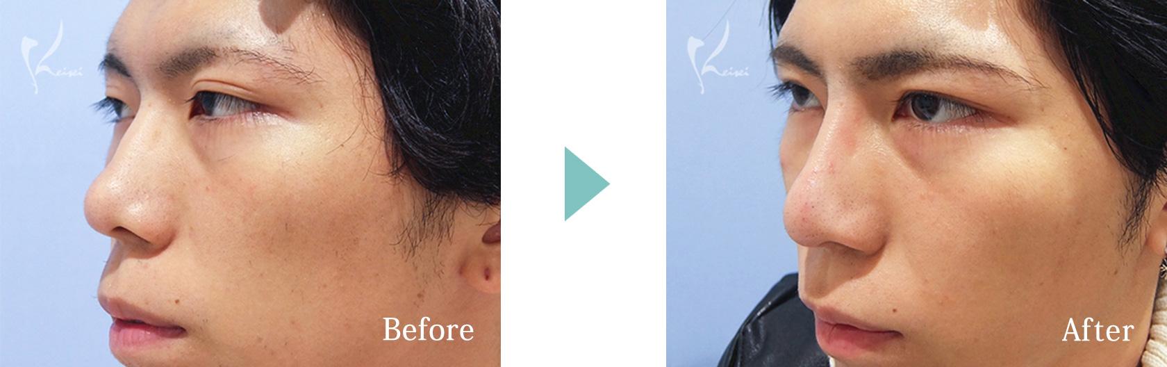 隆鼻術(プロテーゼ)+鼻尖形成+鼻中隔延長(耳介軟骨移植)の症例写真