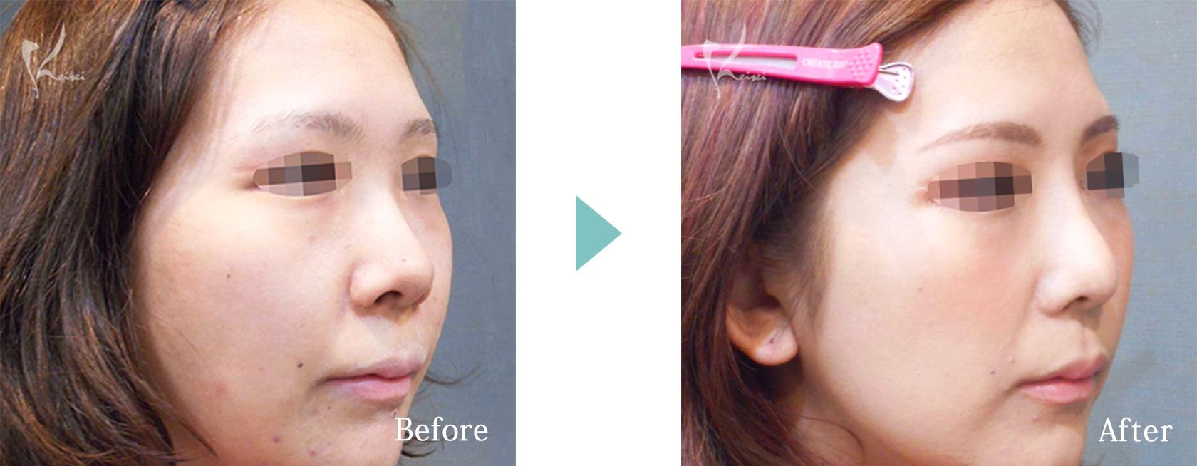 隆鼻術(プロテーゼ)+鼻尖形成+小鼻縮小+鼻中隔延長の症例写真