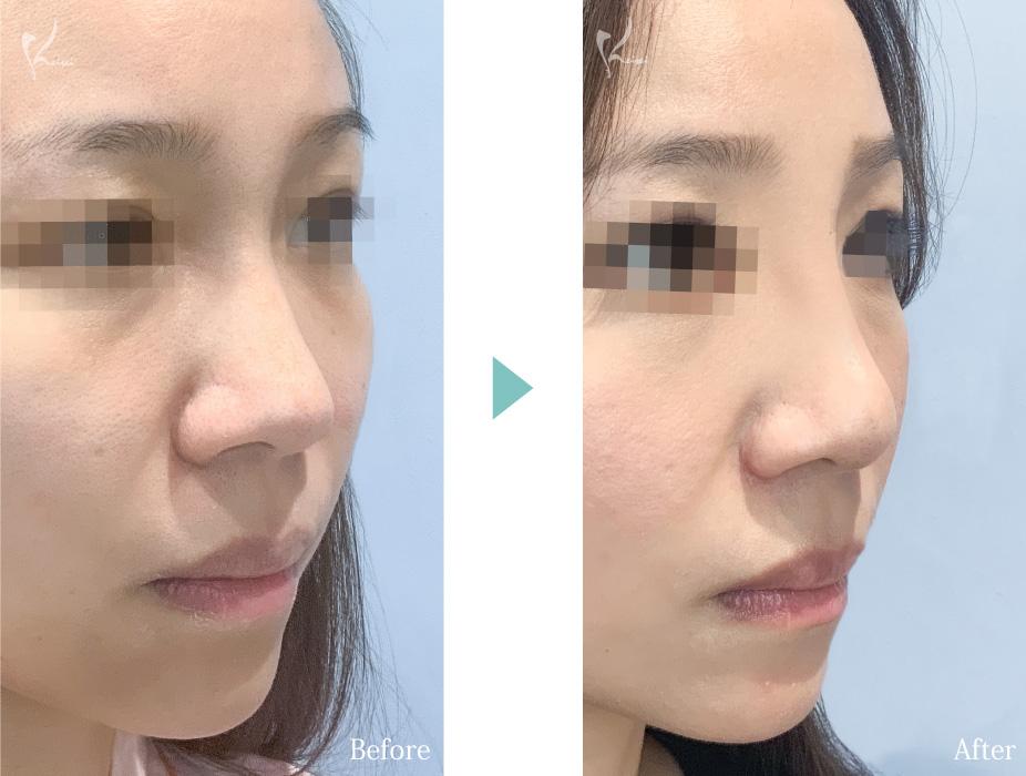 隆鼻術(プロテーゼ)+鼻尖形成+小鼻縮小の症例写真