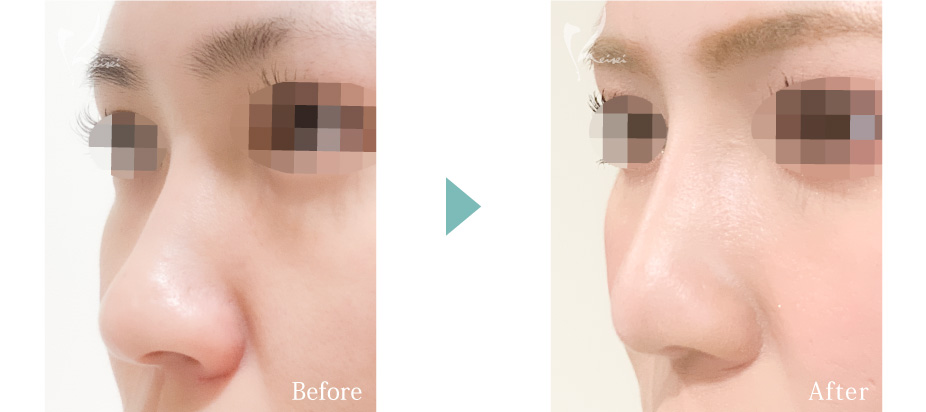 隆鼻術(プロテーゼ)+鼻尖形成+小鼻縮小+鼻中隔延長(耳介軟骨移植)の症例写真