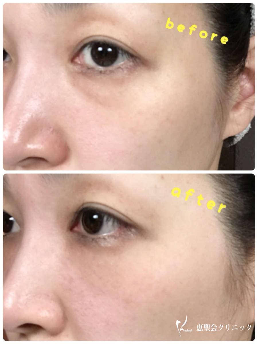 目の下のPRP療法