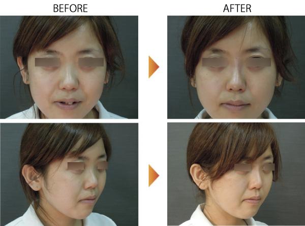 鼻ヒアルロン酸 アップノーズ プチ整形 鼻整形 隆鼻 大阪 症例