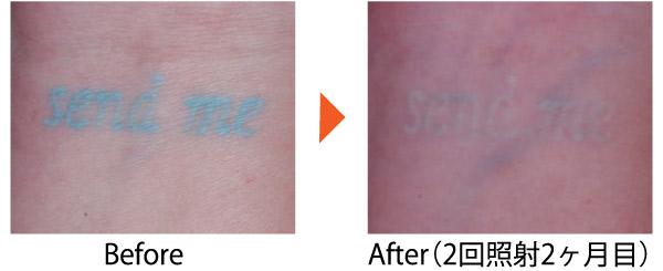 ピコレーザー タトゥー除去 入れ墨除去 刺青除去 カラータトゥー除去 あざ治療 症例