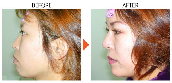 鼻プロテーゼ 隆鼻 インプラント 人工軟骨 アップノーズ 鼻筋 大阪 鼻を高く 症例