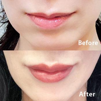 口唇ヒアルロン酸注入のビフォアーアフターの画像