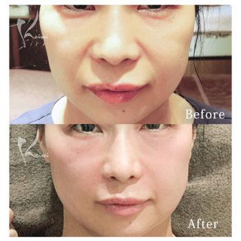 ほうれい線にPRP血小板療法の施術を受ける前後の口元の画像