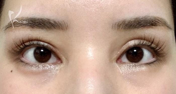 二重修正手術(眼瞼下垂手術)から2ヶ月後の目の画像