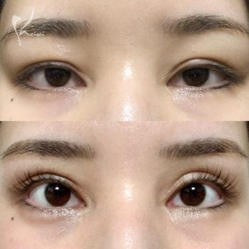 二重修正手術前後の目の画像