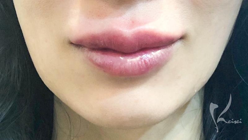 ヒアルロン酸注入直後の唇の画像