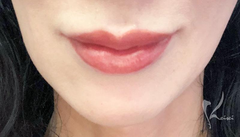 ヒアルロン酸注入から3日後の唇にラシャスリップを塗った画像