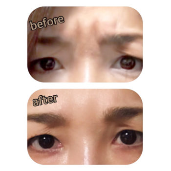 眉間のヒアルロン酸注入の施術前後の画像
