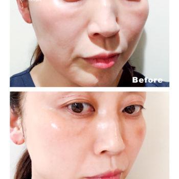 コラジェナイザーの施術前後の顔の画像