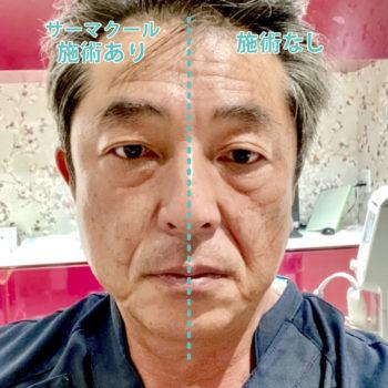 鬼頭理事長がサーマクールを顔半分受けられた顔の左右比較の画像