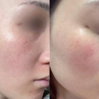 セラピューティック開始前と開始から九日後の頬の比較の画像