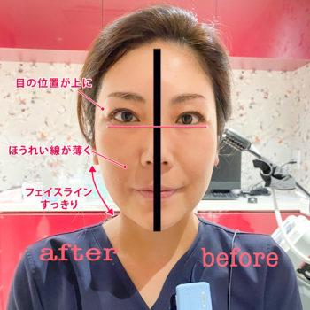 ウルトラセルQプラスを半顔照射後の顔の写真