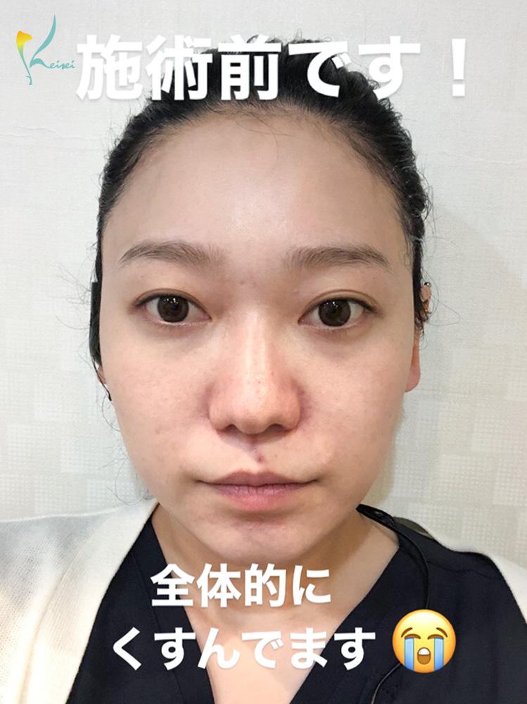 ダーマペン4施術前の顔の画像