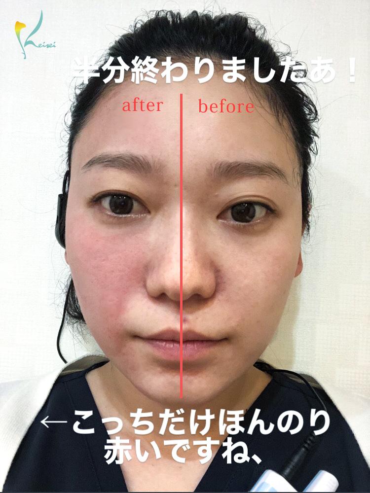 ダーマペン4を顔半分施術した状態の画像
