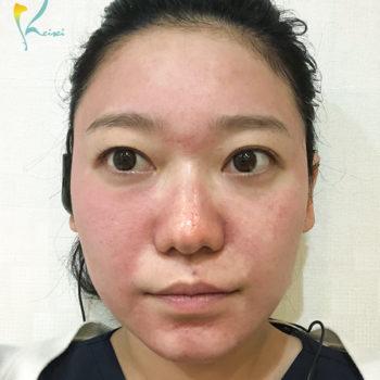 ダーマペン4を全顔に施術した状態の画像