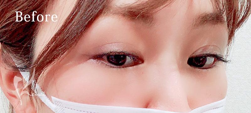 涙袋ヒアルロン酸注入前の目元の画像