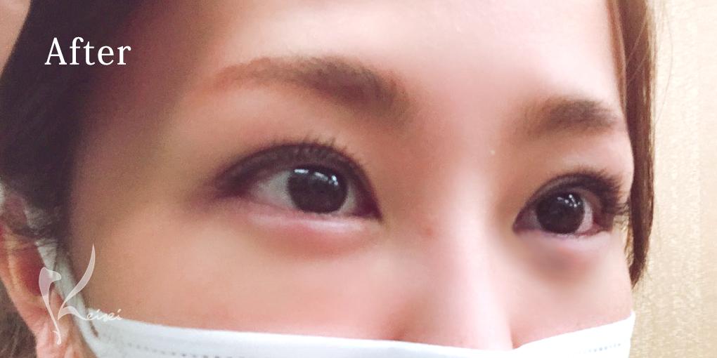 涙袋ヒアルロン酸注入後の目元の画像