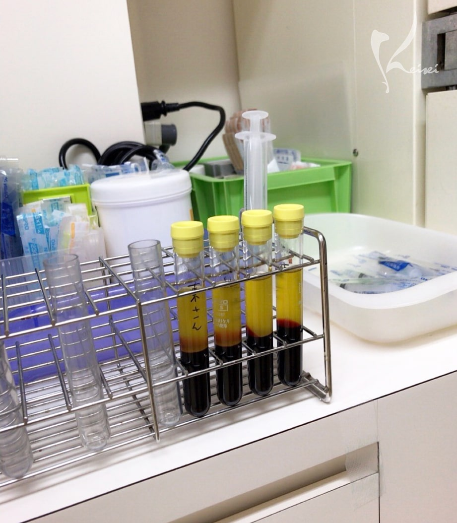 PRP(自己多血小板血漿)培養中の試験管の画像