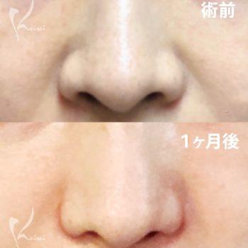 小鼻縮小術(挙上法)のビフォーアフター画像