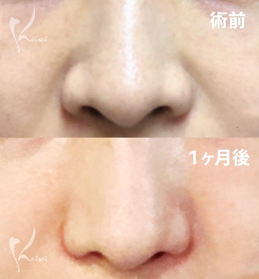 小鼻縮小術(挙上法)のビフォアーアフター画像