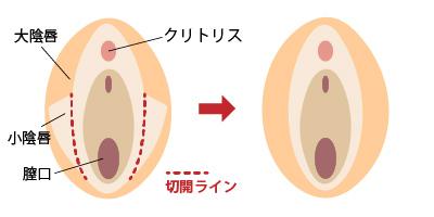 小陰唇縮小 女性器形成 大阪 女性特有の悩み