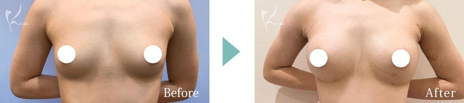 モティバコヒーシリシリコンバッグでの豊胸術の正面の症例写真