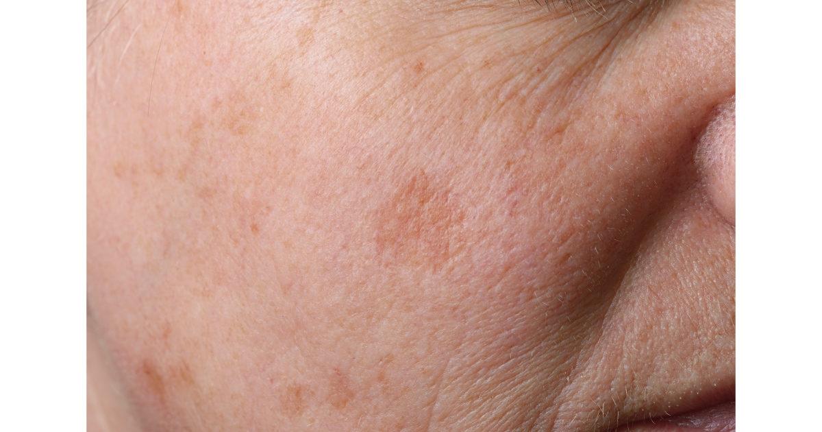 美肌 スキンケア シミ そばかす 肝斑