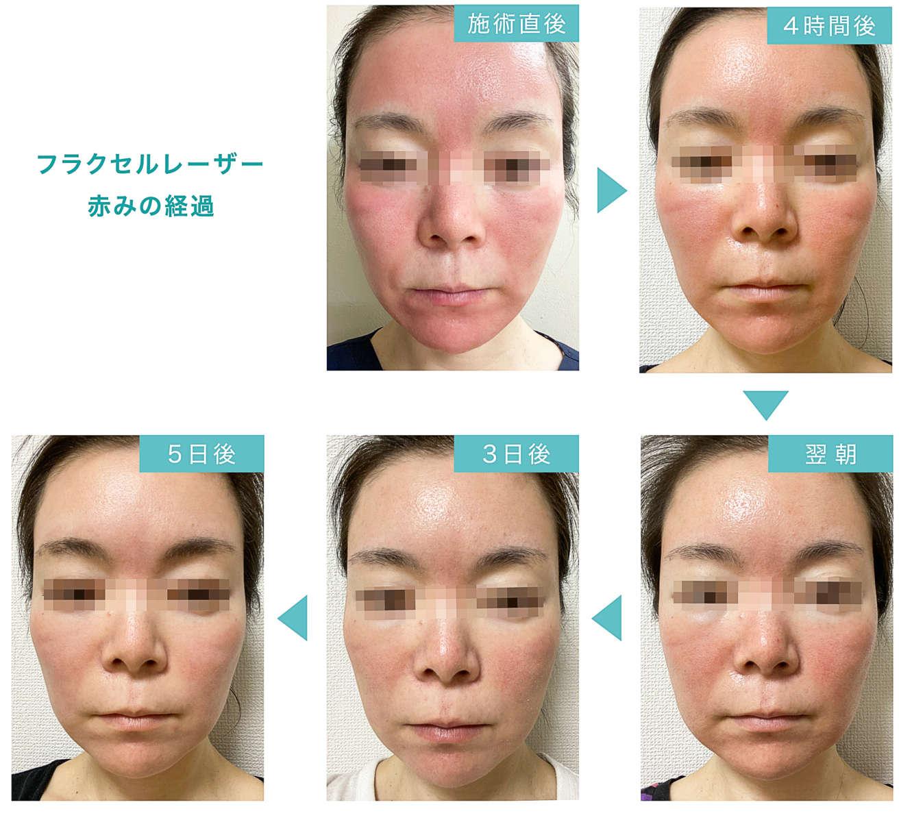 フラクセルレーザー施術後の顔の赤みの移り変わりが分かる画像