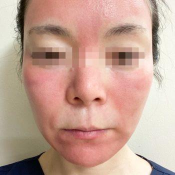 フラクセルレーザー施術直後の顔の赤みが分かる画像