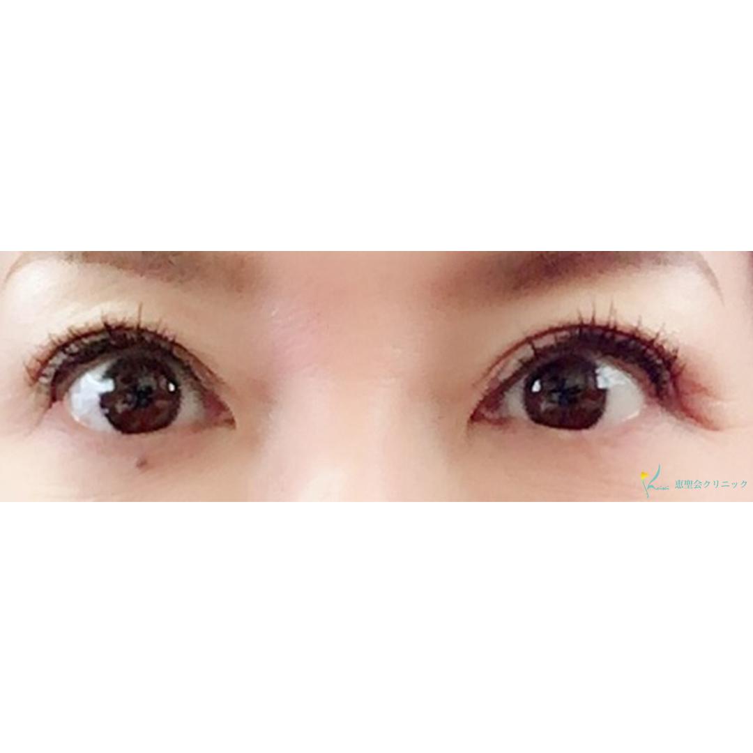 眼瞼下垂 2年後