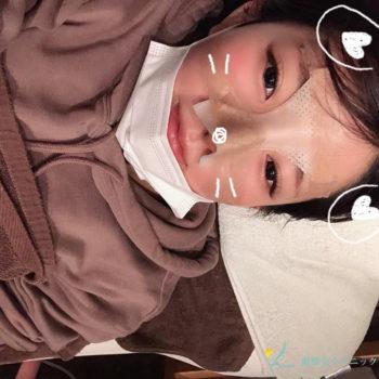 鼻プロテーゼ入替え