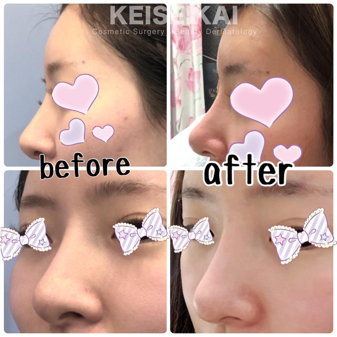 鼻尖形成 before after