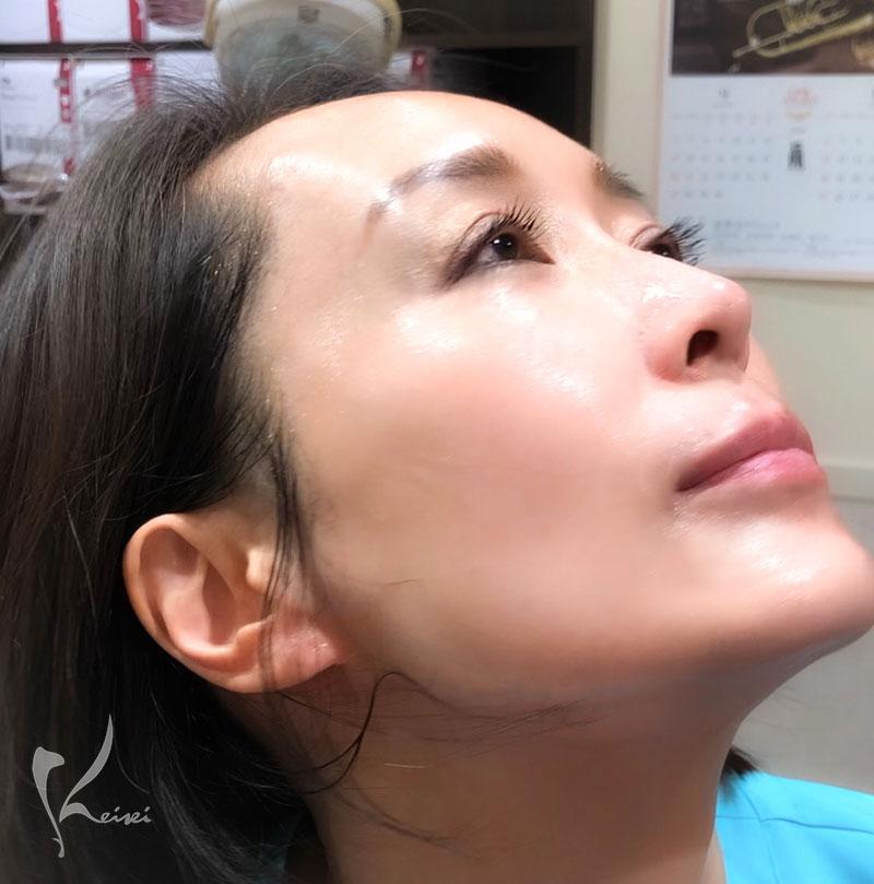 コラジェナイザープレミアムの施術後のお肌の状態
