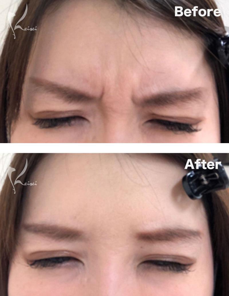 眉間のシワにボトックス注入をした症例写真