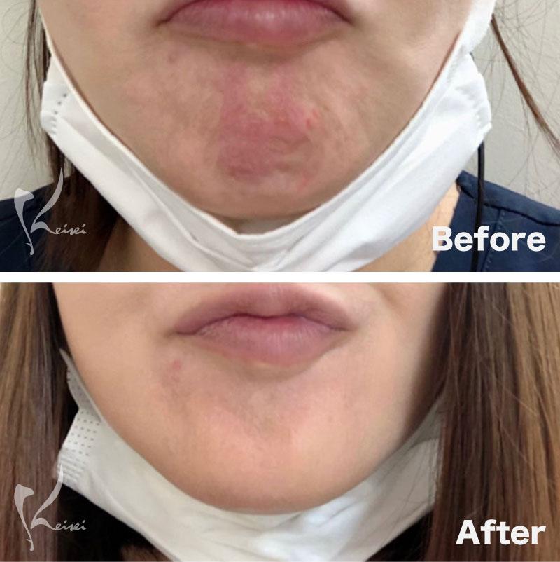 顎の梅干しシワにボトックスを注入した症例写真