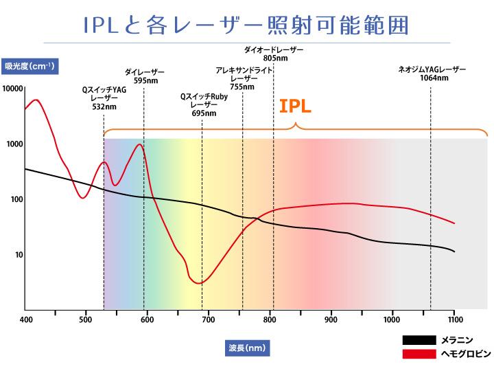 光エネルギー(IPL)と各レーザーの照射可能範囲を示したグラフ