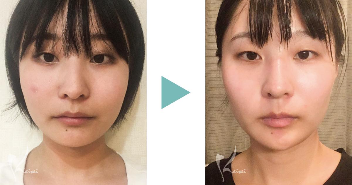 エラボトックス 症例 小顔