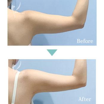 上腕の脂肪吸引の施術前後の比較写真